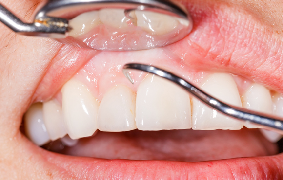 gum disease treatment services